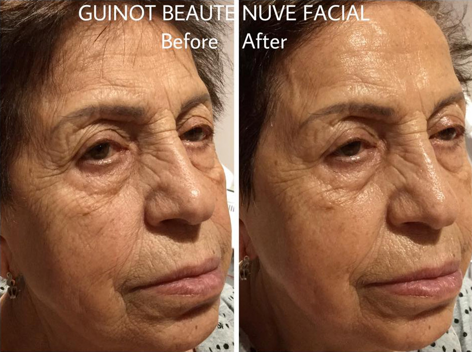 DeVita Beauty & Aesthetics - Gallery - Guinot Facial Beaute Neuve