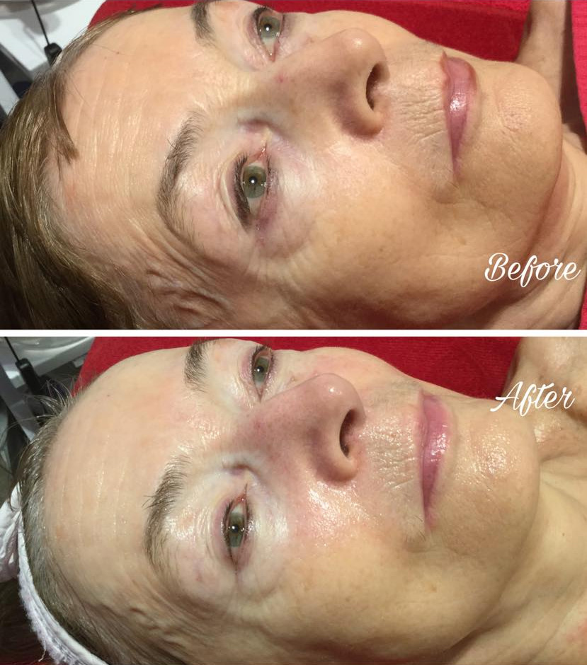 DeVita Beauty & Aesthetics - Gallery - Guinot Hydradermie & Liftosome
